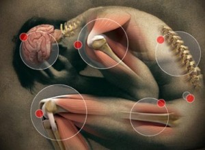 Are you suffering with painful, swollen joints?